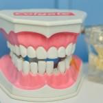 海外で虫歯が見つかった。海外と日本の歯医者の違い