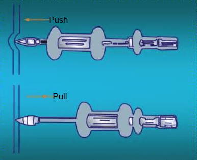 Use a puller to flatten the depression
