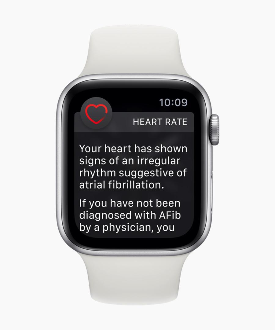 WatchOS 5.1.2 con ECG e rilevamento battito irregolare arriva oggi