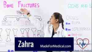 Bone Fractures made for medical lectures