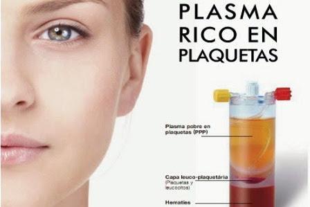 Plasma Rico en Plaquetas 1