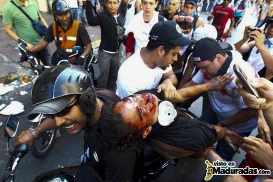muere estudiante en protesta en venezuela