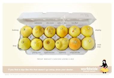 12 limoni rappresentano le anomalie del seno che possono indurre il medico a chiedere una mammografia
