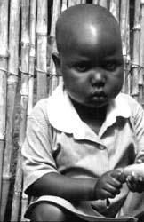 Zagłodzone dziecko rwandyjskie z obrzękami głodowymi (kwasiorkor)