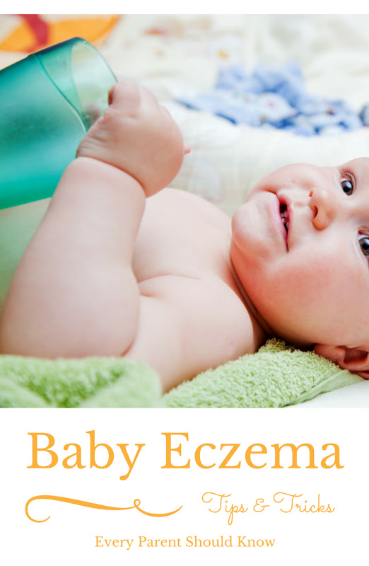 Looking for tips and tricks to ease your baby's eczema? A mom of 4 tells you the information passed on to her by a dermatologist. Tips include what lotions were recommended along with detergent for sensitive skin.  via @mrsmajorhoff