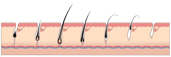 毛周期のイラスト(毛の抜けるところ)