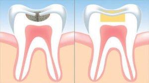 dental filling illustration