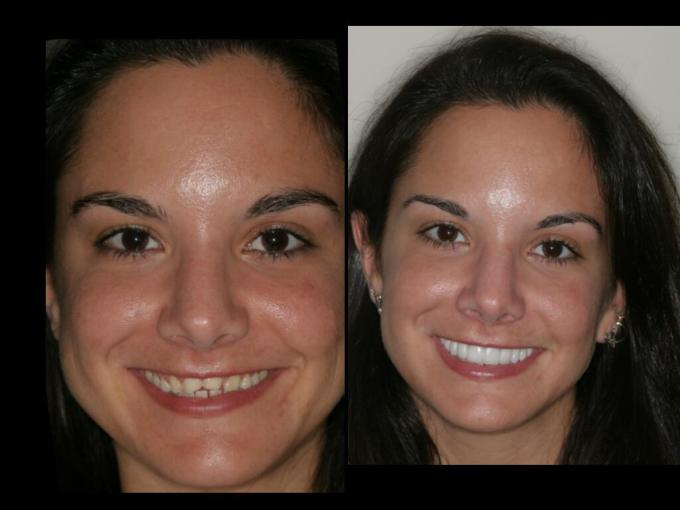 Smile Makeover By Cosmetic Dentistry India