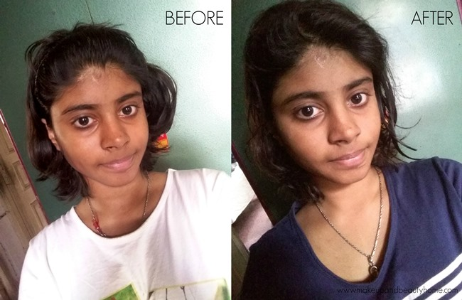 before and after tan removal face pack