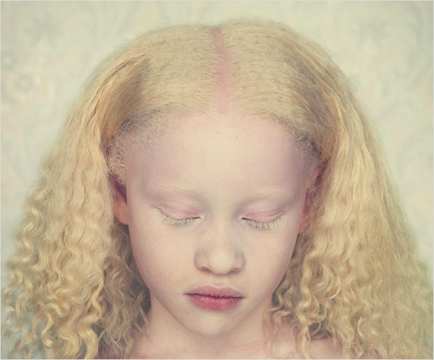 Albinos: prized for their bones