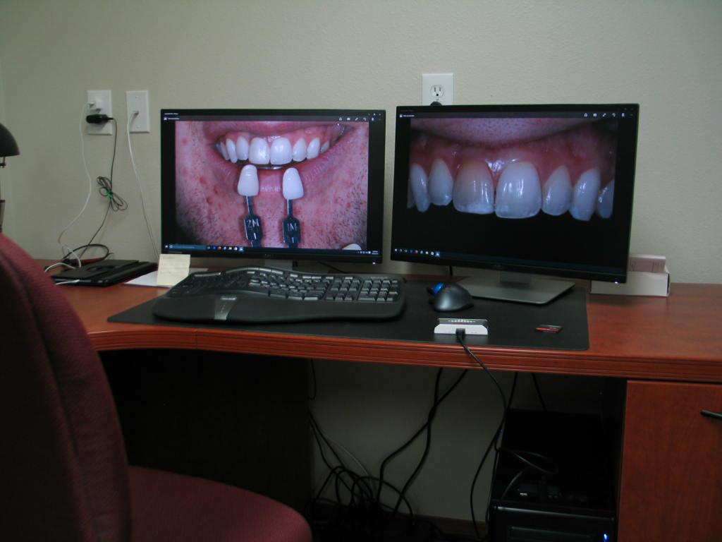 Colorado Smile Design Dental Lab Services