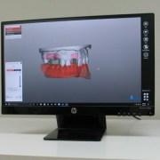 Exocad DentalCAD Software - Malcamp Dental Lab