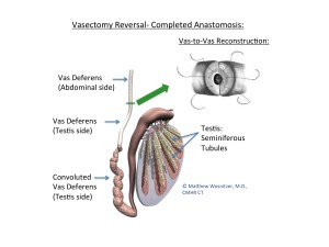 Reverse vasectomy-many factors result in successful vasectomy reversal anastomosis