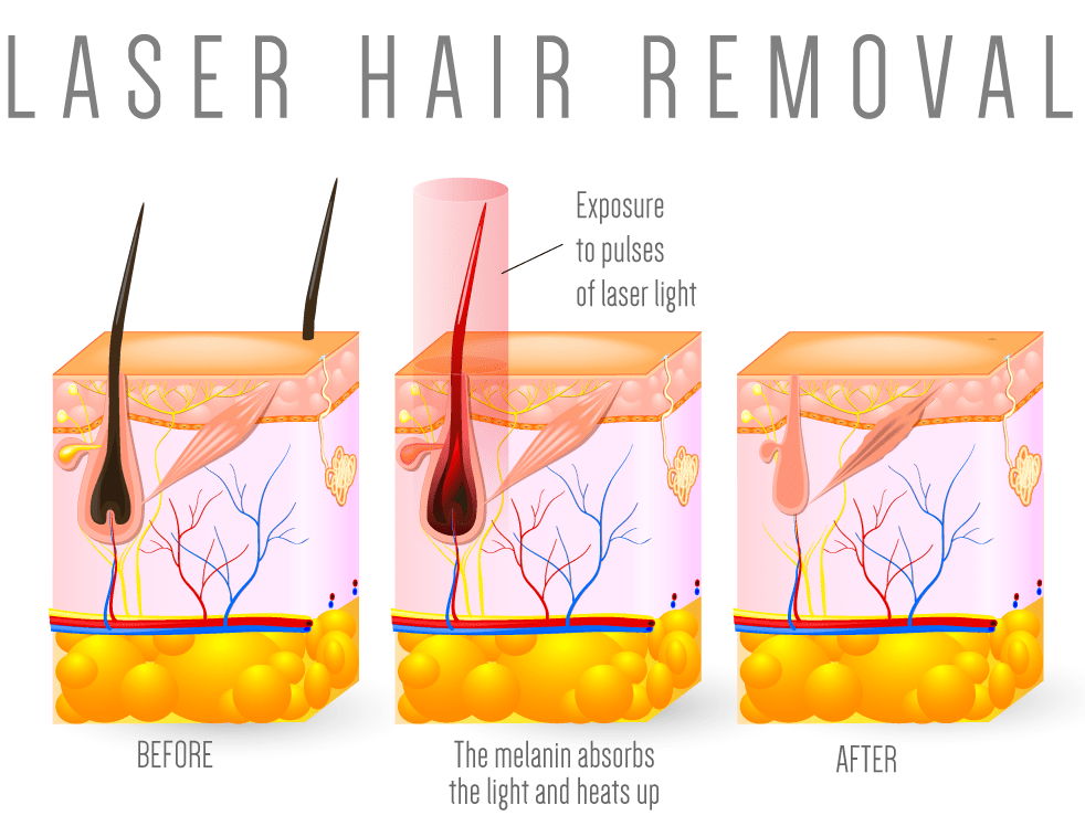 Laser Hair Removal Treatment | Malibu Canyon Medical Spa in CalabasasMalibu Canyon Medical Spa in Calabasas