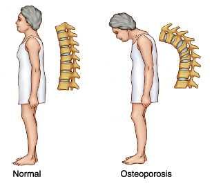 Penanganan osteoporosis pemeriksaan pengobatan pencegahan