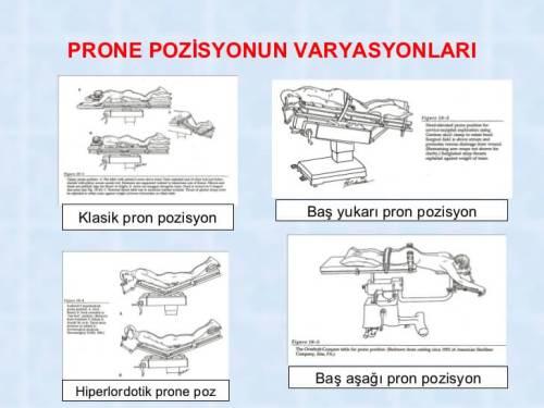 prone pozisyonunun çeşitleri
