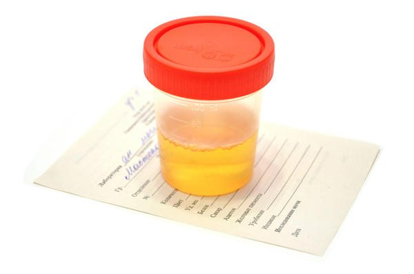urine - BADANIE MOCZU U DZIECKA - INTERPRETACJA WYNIKÓW