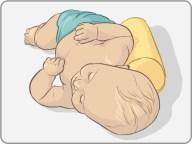 Positional-plagiocephaly3