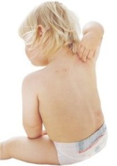 baby-eczema