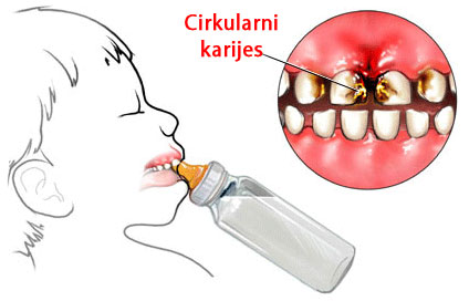 cirkularni-karijes