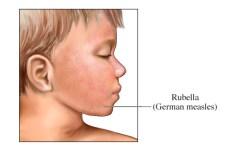 rubella lice