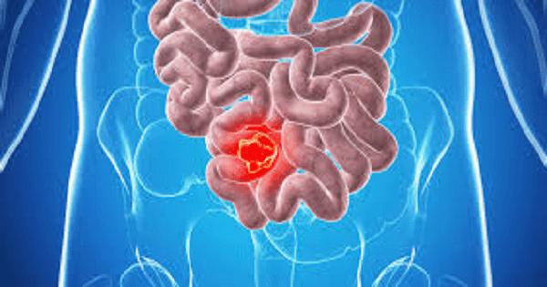 الفرق بين اعراض سرطان القولون والقولون العصبي بالتفصيل ماميتو