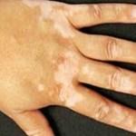 Soluções naturais para amenizar o vitiligo
