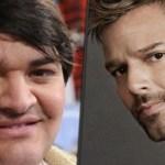 Ele queria se tornar Ricky Martin e foi operado 9 vezes
