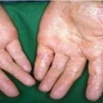 Solução natural para  herpes, eczema, psoríase, dermatite e outras alergias cutâneas…
