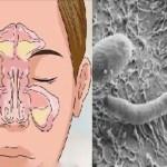 Nariz entupido, rinite ou sinusite? Seu problema está no intestino. Saiba como resolver.