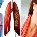 Possíveis sinais do câncer de pulmão que não se deve ignorar.