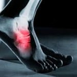 Sente dor na sola do pé ao pisar o chão quando acorda? Isso pode ser sinal desta perigosa doença!