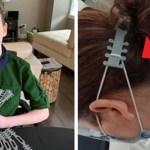 Menino imprime em 3D uma proteção para as orelhas que alivia a dor física dos médicos e enfermeiros
