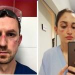 Profissionais da saúde compartilham fotos dos seus rostos feridos após usar equipamento de proteção o dia todo