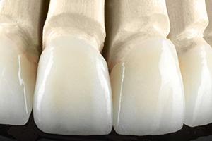 Keramički zubi na gipsanom modelu