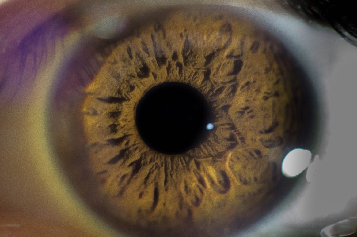 Blood and Guts: Plucking out your eyeballs
