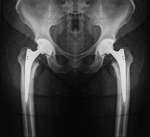 NH Personal Injury Attorneys X-Ray of Hip