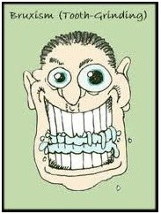 Bruxism (Tooth-Grinding)