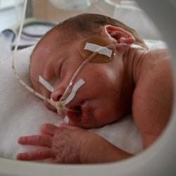 Потница у новорожденных: причины появления, проявление, лечение