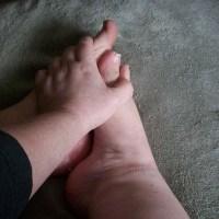 mains et pieds froids