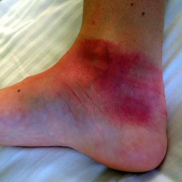 Sunburnt foot