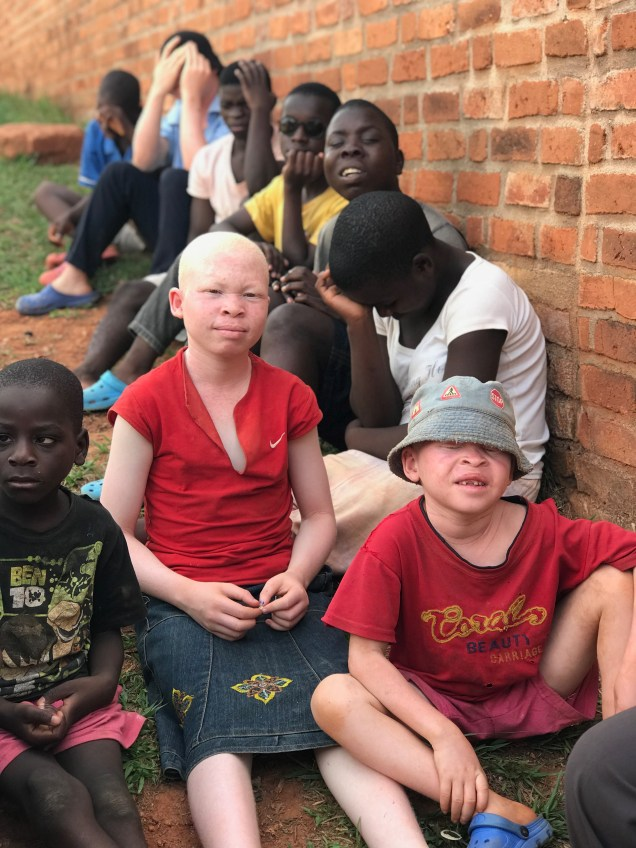 The albinos and blind at the school