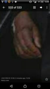 Peter Mutharika's swollen hand zoomed in