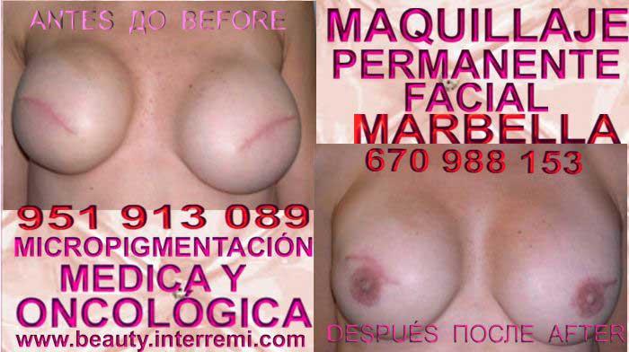 CICATRICES EN AUMENTO PECHO clínica estética micropigmentación ofrenda camuflaje cicatrices luego de reduccion de mamaria