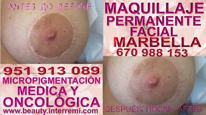 En la CLÍNICA DE MICROPIGMENTACIÓN MÉDICA Y MAQUILLAJE PERMANENTE OFRECE LOS MEJOR PRECIO PARA camuflaje cicatrices luego de reduccion de mamas Marbella o Estepona