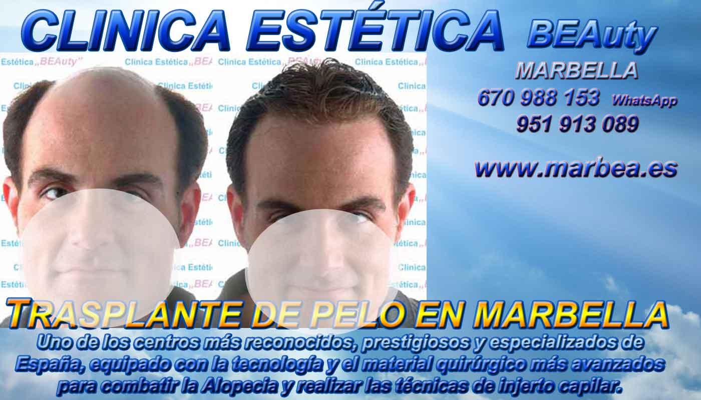 Trasplante cabello Clínica Estética y Trasplante Pelo Marbella y en Málaga