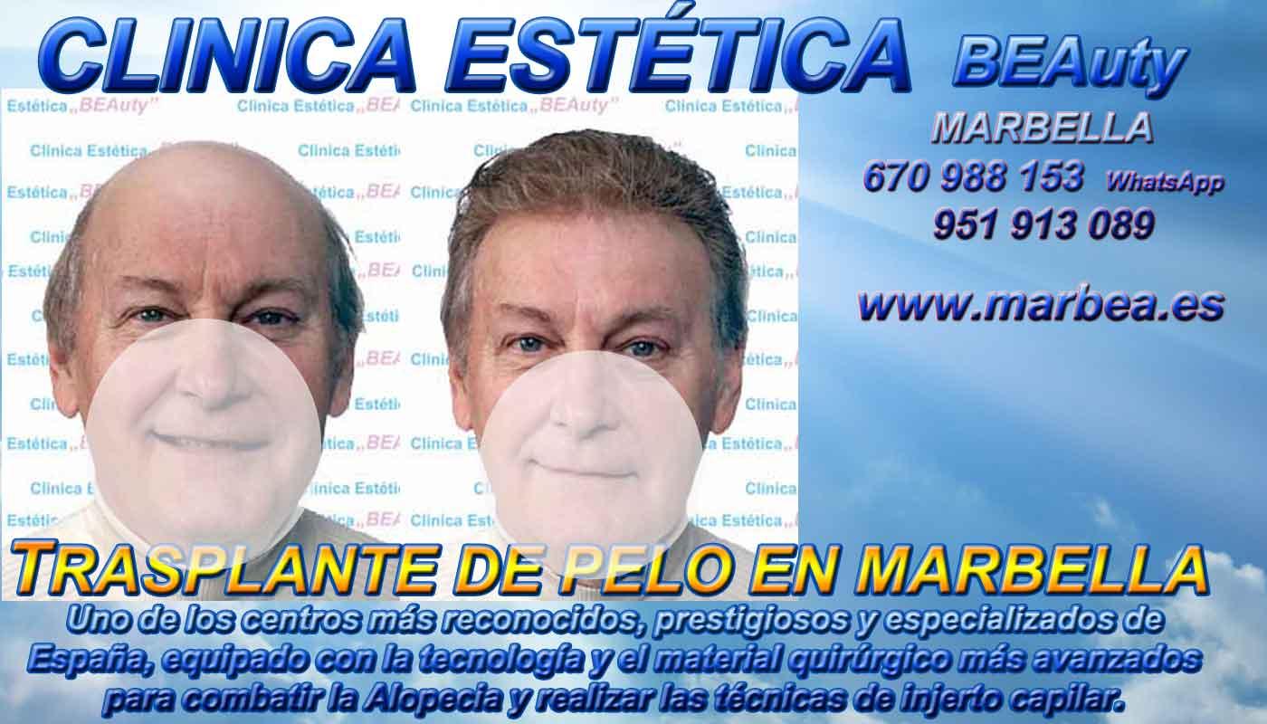 Trasplante cabello Clínica Estética y Trasplante Cabello En Marbella y Málaga