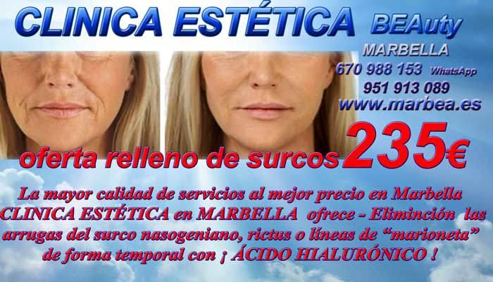 En la CLÍNICA ESTETICA OFRECE LOS MEJOR PRECIO PARA RELLENO DE SURCOS EN MARBELLA