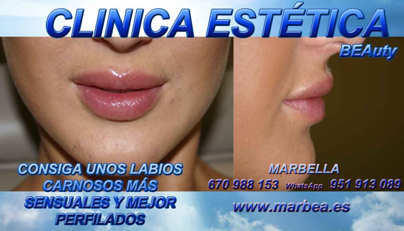 quitar para quitar las cicatrices del acné aumento de labios Puerto Banus