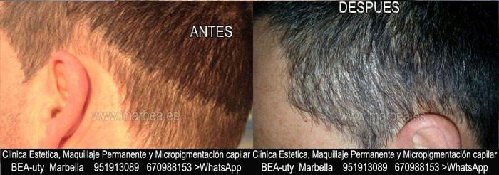 DISIMULAR CICATRIZ CABEZA CLINICA ESTÉTICA dermopigmentacion capilar en Marbella y maquillaje permanente en marbella ofrece: dermopigmentacion capilar , tatuaje capilar